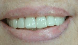 ציפוי שיניים תמונות אחרי